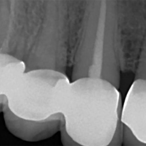 endodontic dental nursing